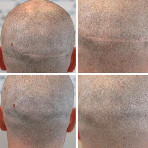 Tricopigmentazione per Copertura Cicatrici